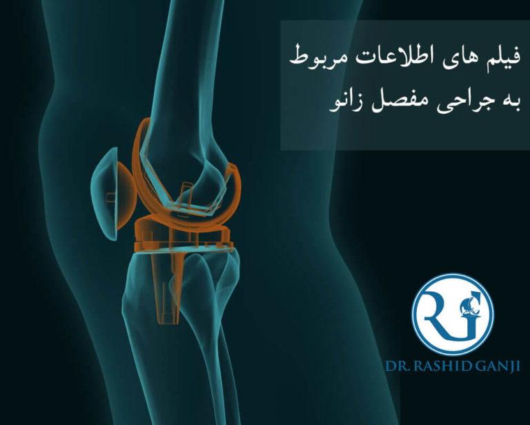فیلم هایی درباره جراحی زانو